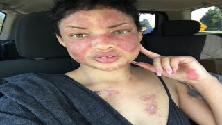 How To REVERSE Lupus & ALL Autoimmune Disease 100% NATURALLY