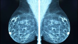 How X Ray Mammography Is Accelerating The Epidemic Of Cancer