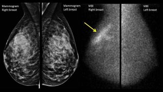 Mammography Screening Truth, LIES & Controversy