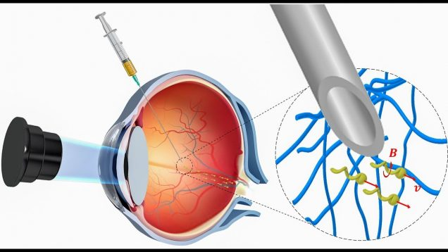 Nanorobots propel through the eye