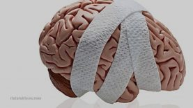 The Negative Effects Of STATINS On BRAIN Health